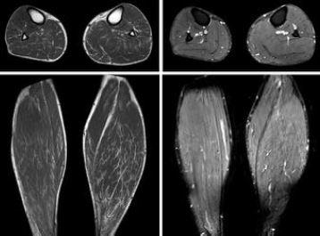 resonancia magnética de la próstata no invasiva de Emilia