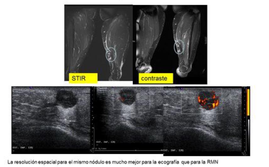 metastasis oseas cancer de prostata seram